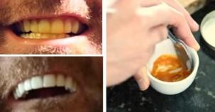Bembeyaz dişler için müthiş karışım