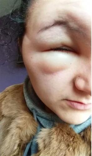 18 yaşındaki genç Georgina Paraskeva'nın yüzü, geçtiğimiz Kasım ayında saçını boyadıktan sonra iki katına kadar şişti. Genç kız iki günlüğüne görme yetisini kaybetti ve saç boyalarında sıklıkla bulunan parafenilendiamin maddesine gösterdiği ciddi alerjik reaksiyonu düşününce kendisini hayatta olduğu için şanslı sayıyor.