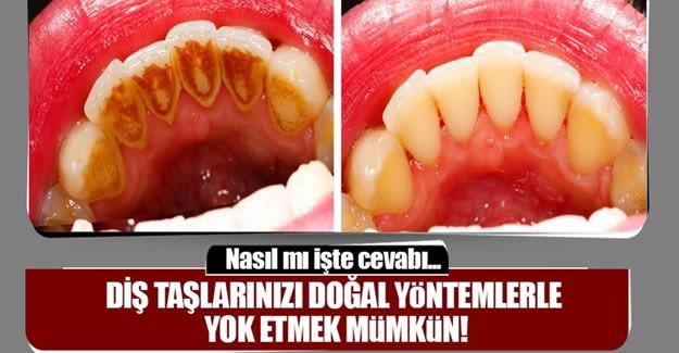 Diş taşlarını bu yöntemlerle yok etmek mümkün...