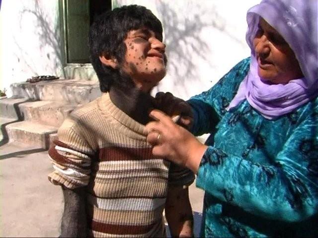 Şanlıurfa'nın Bozova ilçesine yerleşen Ahmed ailesi, 10 yaşındaki kızları için Türkiye'de çare arıyor.