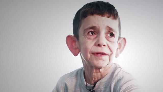 7 yaşındaki progeria yani erken yaşlanma hastası Muhammed Abdelmajeed, yaşadığı zorlukları dile getirerek, yüzünün tedavi edilmesini ve okula gidebilmeyi istiyor