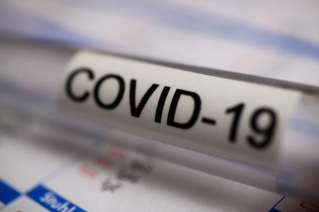 Dün can kaybının bildirilmediği İsveç'te bugün 17 yeni can kaybı olduğunu bildirildi.  Önceki günlere göre vaka sayısında da bir düşüş olduğu gözlenen İsveç'te son bir günde 769 yeni vaka kayıtlara geçti.