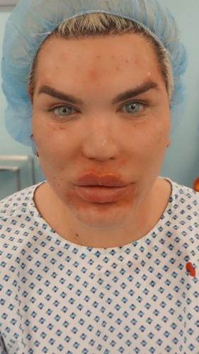 Doktorların tüm uyarılarına rağmen estetik çılgınlığı onu bu hale getirdi.