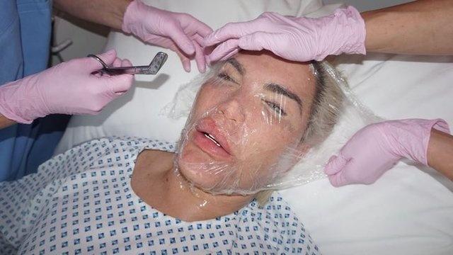 Rodrigo Alves, peş peşe geçirdiği ameliyatlar yüzünden defalarca doktorlar tarafından uyarıldı ancak Alves uyarılara kulak asmadı. İşte Alves'in son hali...