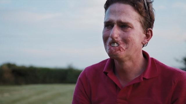 Alex Lewis, uzuvlarını ve dudaklarını ölümcül bir enfeksiyon yüzünden kaybetti.
