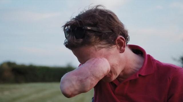 2013 yılında et yiyen bakteri yüzünden kollarını, bacaklarını ve dudaklarını kaybeden 38 yaşındaki Lewis'in hayatı birden kabusa döndü. Kangren yüzünden yüzünün bir kısmı ve dört uzvu da kesildi.