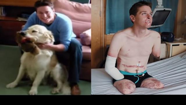 Alex Lewis, 2013 yılında et yiyen bakteri yüzünden kollarını, bacaklarını ve dudaklarını kaybetti. Kesilen uzuvların yerine protezler takıldı, çok zorlu bir süreçten geçti. Görüntüsünün daha normal görünmesi için omuz derisinden dudak yapıldı, kalıcı makyajla dudak belirgenleştirildi. Lewis, bu dudaklarla hayatının değiştiğini söyledi
