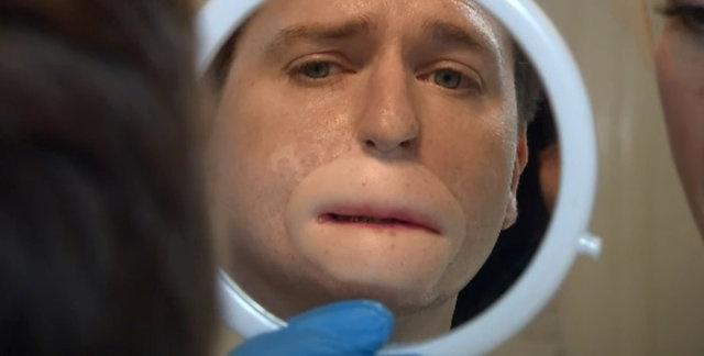Protezler takıldı, onları kullanmaya başladı, dudakları olmadığı için öncelerde plastik ağızlık yapıldı. Ardından görüntüsünün daha normal görünmesi için omuz derisinden dudak yapıldı.