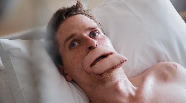 Lewis, tek bir deri parçasıyla hem üst hem de alt dudakların bir kerede kaplanması için ameliyat edilen ilk kişi. Dikilen dudakların daha doğal görünmesi için bir de kalıcı makyaj yapıldı.