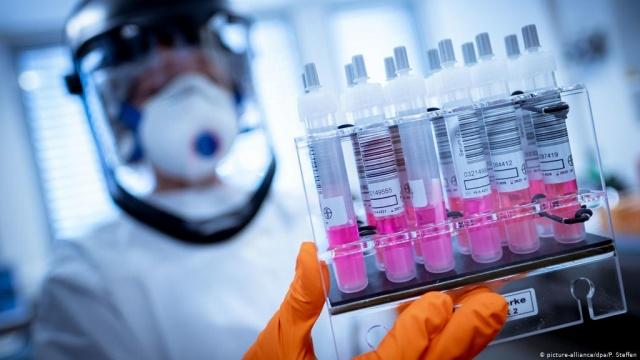 ABD'de Covid-19 iki kez yakalanan genci enfekte eden virüslerin genetik diziliminin farklı olduğu tespit edildi.  The Lancet dergisinin ön baskısında yer alan makaleye göre, Nevada'nın Reno kentinde yaşayan 25 yaşındaki bir hasta önce nisan ortasında, daha sonra mayıs sonunda olmak üzere iki kez yeni tip koronavirüse (Covid-19) yakalandı.  Nisan ayında Covid-19 teşhisi koyulan hastanın, mart sonunda yeni tip koronavirüsle bağlantılı, boğaz ağrısı, öksürük, baş ağrısı, bulantı ve ishal gibi semptomlar hissetmeye başladığı belirtildi.