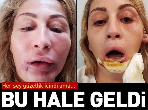 Antalya'da estetik yaptıran 41 yaşındaki Songül Uzunoğlu, geçirdiği 4 operasyon sonucu alt dudağını ve ağız içi dokularını kaybetti.  Antalya'da aşçılık yapan 3 çocuk annesi Songül Uzunoğlu, gözaltı torbalarından kurtulmak için arkadaşlarının tavsiyesi üzerine geçen Şubat ayında Muratpaşa ilçesi Lara turizm bölgesindeki güzellik ve estetik merkezine gitti.