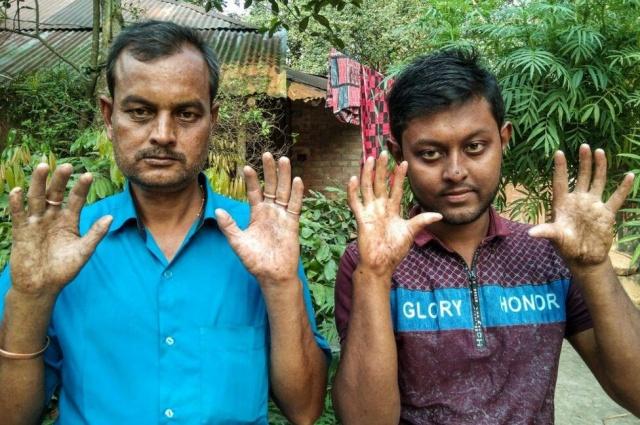 Bangladeş'te yaşayan Apu Sarker'in (22) ailesindeki erkeklerin, nadir görülen bir gen mutasyonu sonucu parmak izlerinin olmaması görenleri şaşırttı.  Bangladeş'in Rajshahi kentine yakın bir köyde yaşayan Apu Sarker'in ailesindeki erkeklerin parmak izi olmaması görenleri şaşırttı. Apu Sarker'in babası ve büyükbabası, nadir görülen bir gen mutasyonu nedeniyle parmak izine sahip değil olmadığını söyledi. Gen mutasyonun ise dünyada çok az kişide görüldüğü ifade ediliyor.