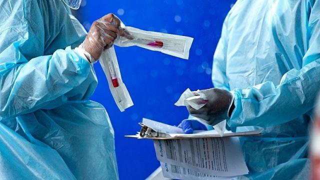 Salgının yayılma hızını ve seyrini belirleyip kontrol altına alınmasını kolaylaştırdığından, koronavirüs testine bir kişinin hastalığa yakalanıp yakalanmadığını ortaya çıkarmasıdan çok daha önem veriliyor.  Pandemi başladığından bu yana en çok tartışılan konulardan biri insanların test yaptırabilme imkanı ve test sonuçlarının güvenilirliği oldu. Bugün Türkiye'de günlük test sayısı 60 binlere kadar çıktı. Toplamda 5 milyon 400 bine yakın test yapıldı ancak birden fazla test yaptıranlar olduğundan kaç kişiye test uygulandığı net olarak bilinmiyor.