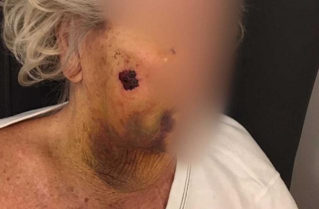 İsveç'in Skåne bölgesinde 92 yaşındaki yaşlı bir kadın feci şekilde dövüldü.