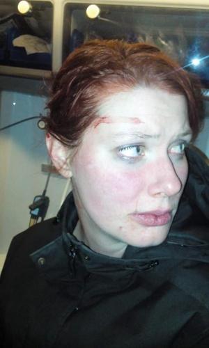 İsveç'te sevgilisi tarafından şiddet gördüğünü ve gördüğü şiddetle ilgili resimleri paylaşan kadının gördüğü şiddetin görüntülerini görenler şok yaşadı.