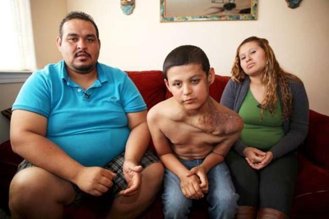 Takma adla 'Jose' olarak çağrılan küçük çocuğun tedavisi için bir dizi ameliyat planlandı.