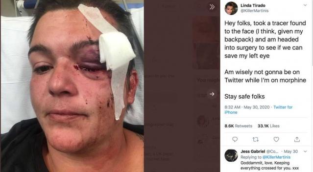 Trum'ın Amerikasında polis cinayetine isyanın üzerinden bir hafta geçti. Olayların durulmadığı ABD'de polis şiddeti işlerini yapmaya çalışan basın mensuplarına yönelikte giderek artmaya devam ediyor.  Protestolar sırasında serbest fotoğrafçı, aktivist ve yazar Linda Tirado geride bıraktığımız cumartesi günü twitter hesabında paylaştığı görüntüyle polis şiddetini resmetti.