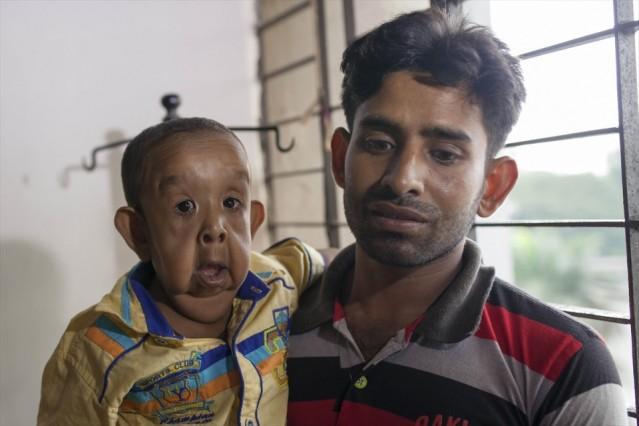 Bangladeş'te yaşayan 4 yaşındaki Bayezid Hossain, dünyada oldukça nadir görülen bir rahatsızlık olan erken yaşta yaşlanma hastalığıyla dünyaya geldi. Bayezid Hossain'in cildi, rahatsızlığı sebebiyle 80 yaşında birinin cildine benziyor.
