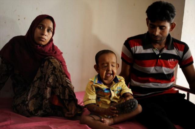 Bayezid Hossain isimli Bangladeşli bu çocuk henüz 4 yaşında ancak 'progeria' isimli hastalığı sebebiyle 80 yaşındaymış gibi görünüyor.