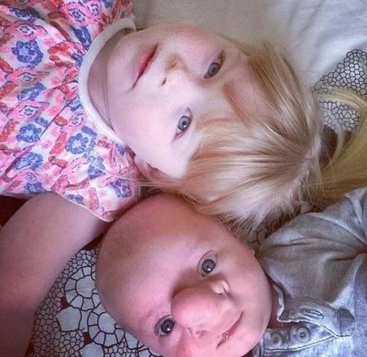 """Amy, """"Annabelle ile sadece kardeş değiller aynı zamanda harika arkadaşlar. Hatta Annebelle, Ollie ile daha fazla ilgileniliyor diye kıskanıyor"""" dedi.  Ollie çeşitli operasyonlara girdi ve girmeye de devam ediyor.  Başta Amy, oğlunu operasyona sokmakta kararsızdı. Doktorlar enfeksiyon kapma riskinin çok yüksek olduğunu söyleyince oğlunun operasyon geçirmesini kabul etti."""