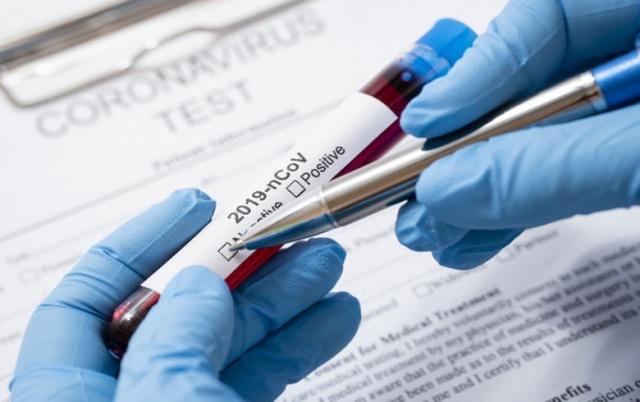 'BÜYÜKLERİMİZE SESLENMEK İSTİYORUM'  Koronavirüsün ortaya çıkışının üzerinden 104 gün geçti. Süreci yakından izliyorsunuz. Dün akşam saatlerinde bugüne dek tespit edilen vaka sayısını açıkladım. Şüphelilerin takibinde testlerin hızla yapılmasında tanık olan hastaların izole edilip tedavi altına alınmasında titiz davranıyoruz. Dün itibariyle toplam test sayısı 20 bin 345'ti, tanı sayısı 1236 olmuştu. Kaybettiğimiz hasta sayısı ise 30. Her biri ileri yaşlardaydı ve kovid19'a eşlik eden başka hastalıkları da bulunuyordu. Büyüklerimize seslenmek istiyorum. Onların koronavirüsten etkilenmemeleri konusunda bizler sorumluluk sahibiyiz. Bu toplumun sizin hayat tecrübenize ihtiyacı var, ailelerinizin size ihtiyacı var. Hayat yolculuğunda evlatlarınızın vereceğiniz tavsiyelere ihtiyacı var. Torunlarınızın sevginize ihtiyacı var. Bunları hastayken yapamazsınız.