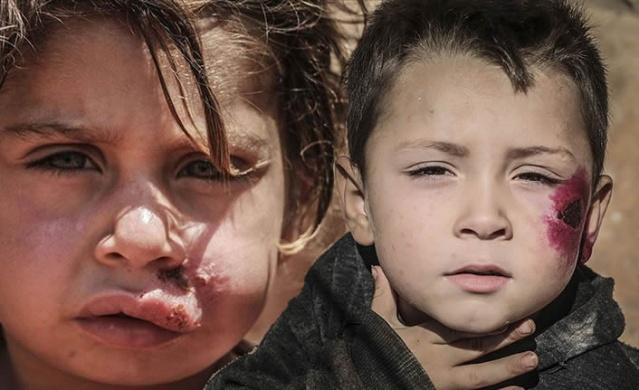 """Ailesinden 7 kişiye şark çıbanı bulaşan Muhammed El İbrahim, """"Hastalığın yayılmasından endişeliyiz, kontrol edemiyoruz. Sağlık hizmetine, tedaviye ve ilaca ihtiyacımız var."""" dedi.  Suriye'nin İdlib ilindeki sığınmacı kamplarında, uygun olmayan yaşam şartları ve sağlık hizmetlerinin yetersizliği şark çıbanı hastalığının yayılmasına neden oluyor.  Beşşar Esed rejimi ve destekçilerinin saldırılarından kaçan sivillerin kaldığı kamplarda açıkta kalan foseptik çukurları ve zarar gören kanalizasyon başta olmak üzere altyapı sorunları nedeniyle şark çıbanı tehlikesi baş gösterdi.  Saldırılardan kaçarak ailesiyle Şam el Hayır kampına sığınan Muhammed el İbrahim, AA muhabirine yaptığı açıklamada, ailesinden 7 kişiye şark çıbanı bulaştığını söyledi.  İbrahim, """"Yaşadığımız kampın durumu içler acısı. Kampta kirli su birikintisi ve kötü koku var. Ailemden 7 kişiye hastalık bulaştı ve çocuklar iyileşmiyor."""" dedi."""