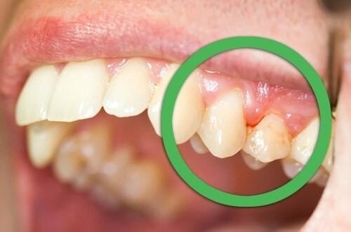Bu artıklar fırçalama ile tamamen giderilemediğinde, dişlerin yapısına zarar verir, diş ve diş eti bölgelerinde iltihaplanmalara, daha sonra da diş minesinde bozulmalara yol açar.