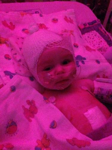 Ellie'de nadiren rastlanan türden bir tümör vardı.  Teşhisin ardından Ellie ve ailesi hastanede uzun süre zaman geçirdiler.  Prayers for Ellie Walton ismindeki bir sayfa Ellie'ye destek verilmesi için oluşturuldu.