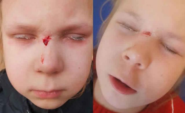İsveç'te sandalyeden düşen 7 yaşındaki Amelia doktora götürüldü. Doktor ve hemşire yarayı tedavi etmek yerine küçük kızın göz kapaklarına kan kesici yapışkan sürdü.  Amelia'nın annesi 36 yaşındaki Pia Olsson yaşanan olayın karşısında hayrete düştü. Cuma öğleden sonra, 7 yaşındaki Amelia sandalyeden düştü ve yaralandı. Kaşlarının arası kanayan kız, annesi Pia tarafından Norrköping'in Hageby'deki sağlık merkezine götürüldü.