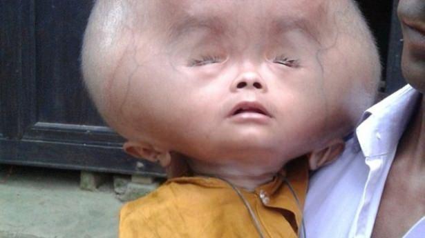 Ailesi çok fakir olan minik Emon'un ebeveynlerinin yurt dışına çıkacak maddi durumları ise maalesef bulunmuyor..