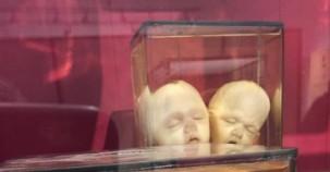 Kopenhag'ın en ilginç 5 müzesi