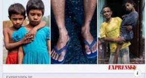 İsveç ve Batı'nın giyim firmaları Bagladeş'te çocukların engelli doğmasına neden oluyor