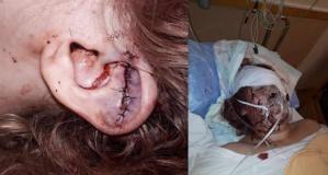 İsveç'te bir kadın eski sevgili tarafından ölesiye dövüldü