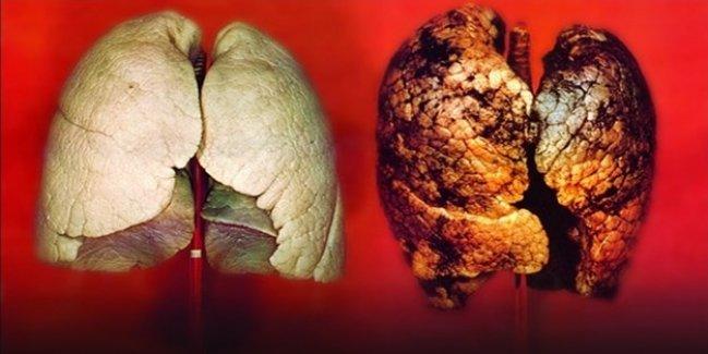 İşte akciğerleri 3 günde temizleyen yöntem