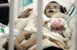 Gıda krizi nedeniyle, o ülkede 100 bin çocuğun hayatı tehlikede