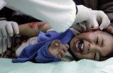 BM: Dünyadaki sağlık tesislerinin önemli bir kısmı temiz sudan mahrum