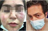 Polis 17 yaşındaki Türk kızını ve babasını hastanelik etti