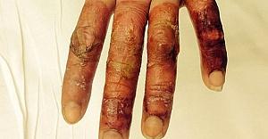 Sarhoş kadın eksi 30 derecede sızınca parmakları bu hale geldi!