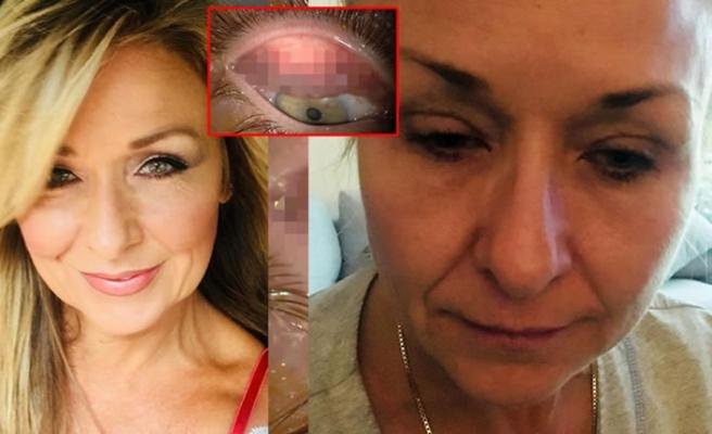 25 yıl boyunca yüzünü yıkamayan kadın doktorları bile şok etti