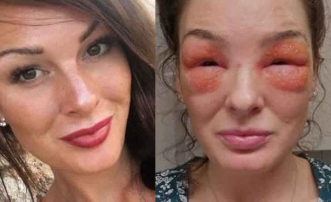 İsveçli kadın cilt kremi sürdü az kalsın gözlerinden oluyordu