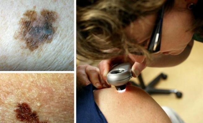 İsveç'te kötü huylu cilt kanseri melanom artıyor