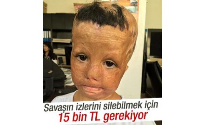 Bu çocuğun tedavisi için para gerekiyor