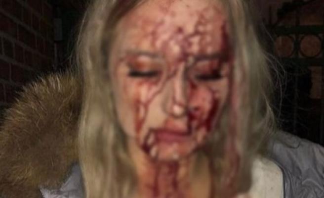 Şok fotoğraf! İsveçli genç kızın başına şişe vurdu