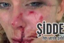 Şiddetin fotoğraflarını facebook'ta paylaştı! 20 bin insan lanetledi!
