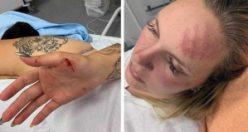 İsveçli iki kız kardeş sokak ortasında dövüldü