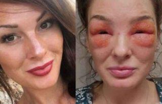 İsveçli kadın cilt kremi sürdü az kalsın gözlerinden...