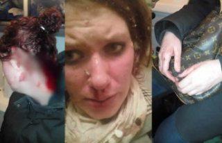 İsveç'te şiddet gören kadın isyan etti