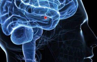 Bilim insanları beyinde acı duymayı tamamen engelleyecek...