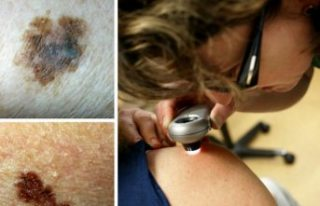 İsveç'te kötü huylu cilt kanseri melanom...