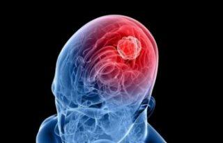 Araştırma: Covid-19'un nörolojik etkisi ölüm...